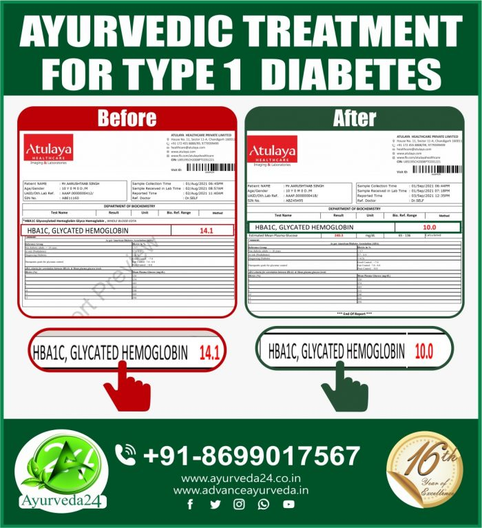 Another Success Story of type 1 Diabetes. Many More to Come
