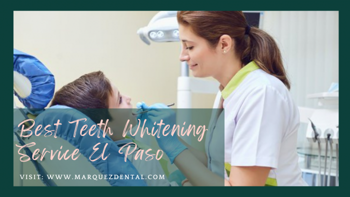Best Teeth Whitening Service El Paso