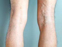 bulging veins in legs