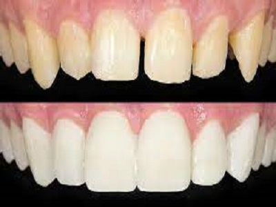 Affordable Cosmetic Dentistry Procedures