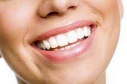 Cosmetic Teeth Whitening Dentist Near Me