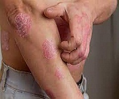 Eczema Ayurvedic Treatment at Affordable Price