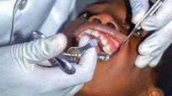 Emergency Dental Extraction Near Me