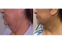 Best Face Lift Surgery in Delhi | Dr. Vivek Kumar