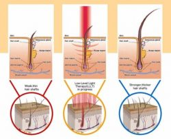 Best Low Level Laser Therapy Treatment With Beauty Recipe In Singapore