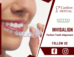 Improve Your Self-Confidence with Cosmetic Dentistry