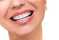 teeth alignment