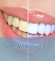 Teeth Whitening Treatment in San Diego