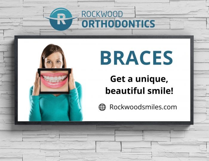 Upkeep the Guidelines for Braces