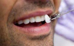 One of The Best Porcelain Veneer Dentist In Houston