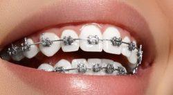 Dental Services Orthodontics