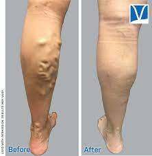 Go through the vein clinics' offered varicose vein treatments
