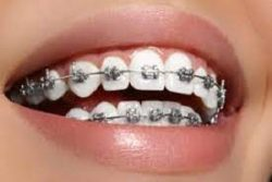 How Effective Are Braces at Fixing an Overbite?