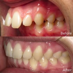 Find the Best Miami Orthodontic Specialists for Braces