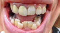 The Fastest Way to Straighten Teeth