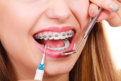 What Are the Best Types of Braces for Kids?