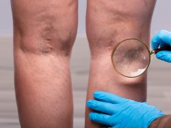 What are the qualities of the best vein doctors in Midtown Manhattan?