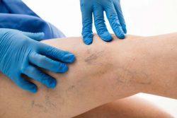 How to diagnose vein disease?