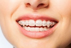 Get a New Smile with the Best Invisible Braces | Invisible Aligners Near Me
