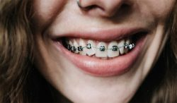 Orthodontist for Braces Near Me on a Budget | Ivanov Orthodontic