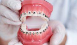 Best Orthodontist Near Me for Braces