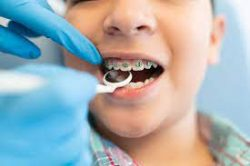 How to Find the Top-rated Orthodontist Near Me? | IVANOV Orthodontic