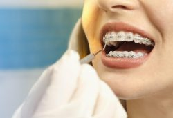 is Teeth Alignment After 50 Worth It?