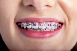 How Your Face Changes After Braces?