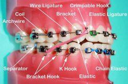 How Effective is Orthodontics in grown-ups?
