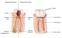 How Much Pain Will I Have After a Root Canal and When Should I Seek Help? | Root Canal Dentist