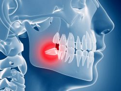Is Wisdom Teeth Extraction Painful? | Relief from Wisdom Tooth Pain