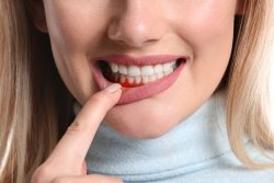 How to Treat Periodontitis? | Dental Clinic in Tanglewood | URBN Dental Houston