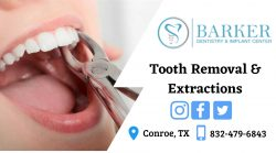 A Simple Extraction of Teeth Removal
