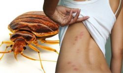 Get The Bed Bug And Flea Treatment in Delhi