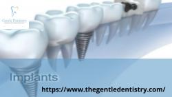 Dental Implants Carmel Valley San Diego