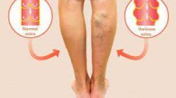 What is the best method of varicose veins treatment?