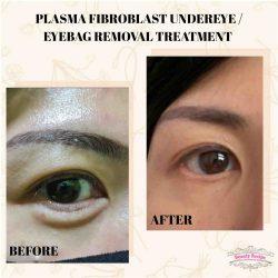 Procedure Of Eye Bag Removal