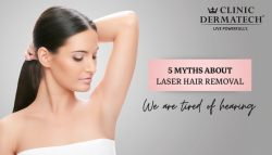 5 Myths About Laser Hair Removal We Are Tired Of Hearing