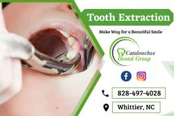 Remove Your Wisdom Teeth