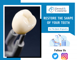 Recover The Natural Look Of Your Teeth