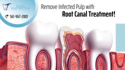 Root Canal Therapy to Protect Infected TeethRoot Canal Therapy to Protect Infected Teeth