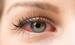 Why does eyelash glue cause irritation?