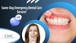 Top-Notch Emergency Dental Care Services