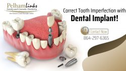 Transform Your Smile with Dental Implant