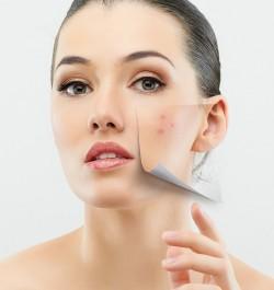 Acne Treatment Tablets UK