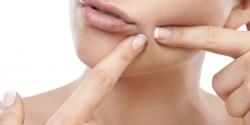 Acne Treatment Pills UK
