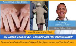 Dr James Farley NJ – Thyroid doctor Morristown
