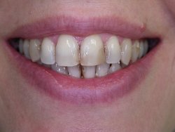Dentist Anti-aging nyc