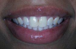 Nyc Gum contouring
