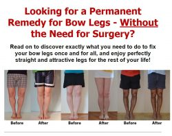 Permanent Remedy for Bow Legs